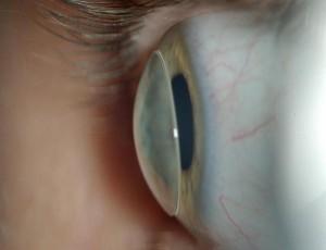 Vormstabiele contactlens